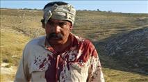 ערבי נפצע בעימות עם יהודים בשומרון