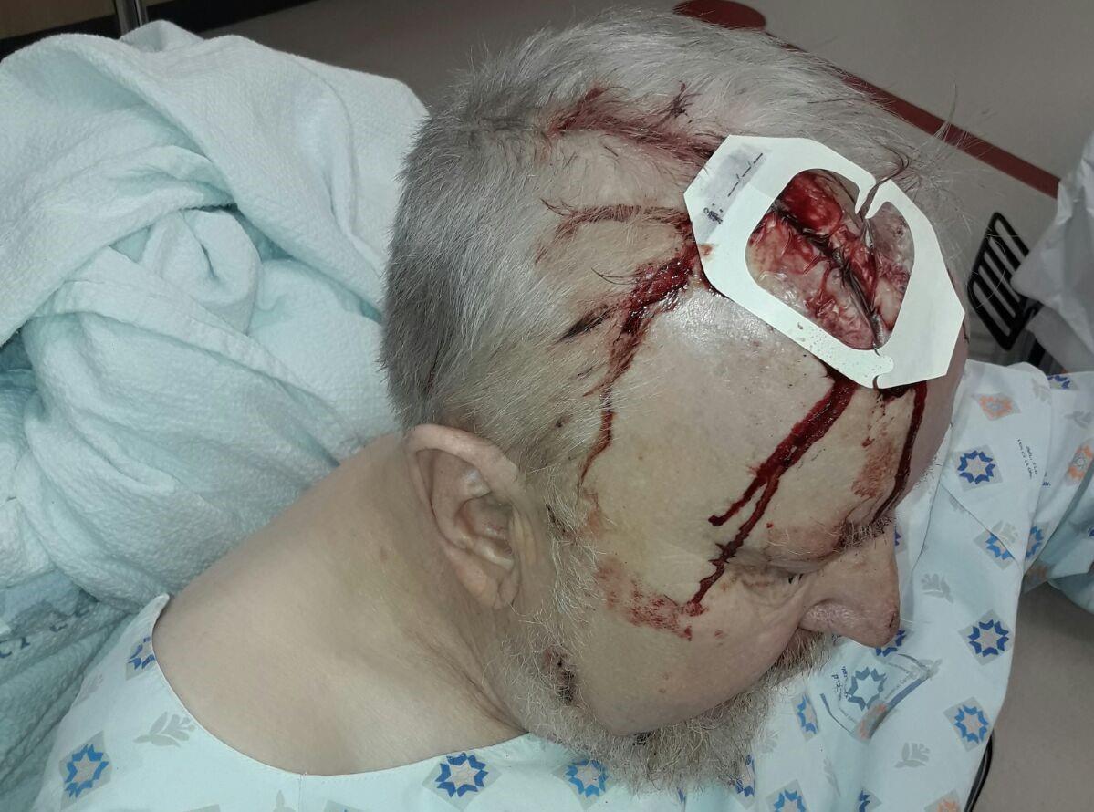 """הפצוע בן ה-70 מפיגוע הדריסה בגוש עציון. צילום: הצלה יו""""ש"""