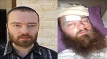 """פצוע הפיגוע תובע מעל למיליון ש""""ח מהמחבל"""