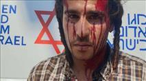 הלינץ' בשומרון: הפצועים היהודים נעצרו בידי המשטרה