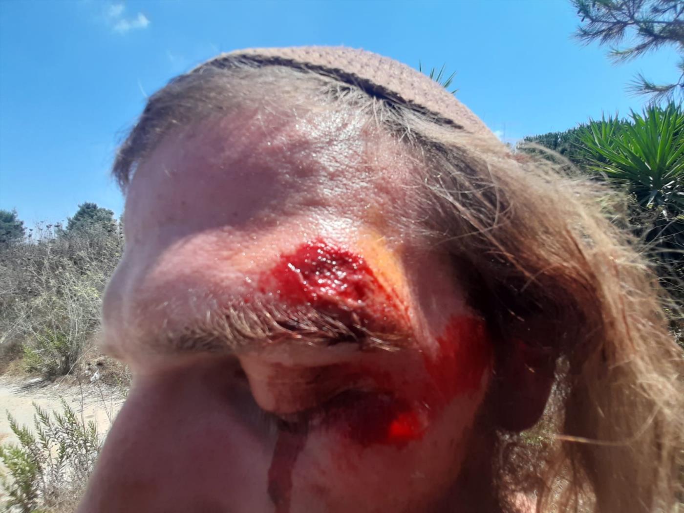 """בחור שנפצע מאלימות המג""""ב"""