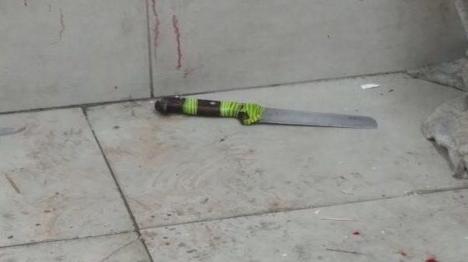 שני שוטרים נפצעו בפיגוע בירושלים